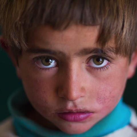 صور: ما هو مرض شلل الأطفال؟