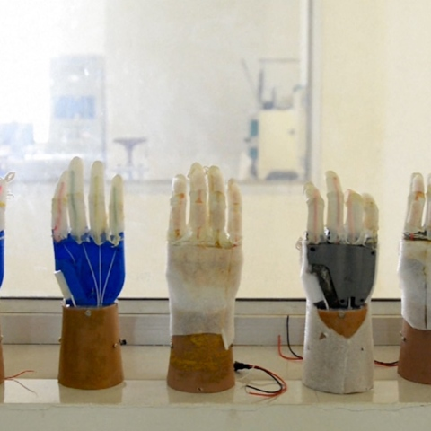 Photo: Cheap Artificial Limbs