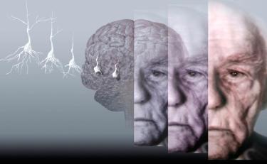 Photo: Sleep Well To Avoid Alzheimer's