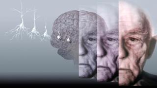 Sleep Well To Avoid Alzheimer's