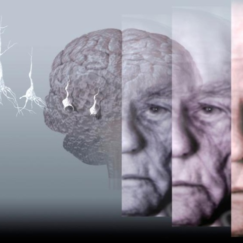 Photo: Sleep well to avoid Alzheimer's