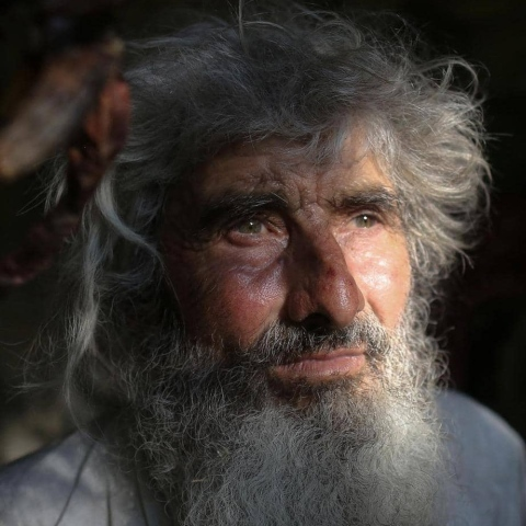 صور: بعد عشرين عاماً من العزلة.. خرج إلى العالم لتلقي لقاح كوفيد-19!